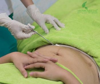 Chăm sóc Y khoa vết may mổ/vết may tầng sinh môn bằng dụng cụ Y tế tiệt trùng